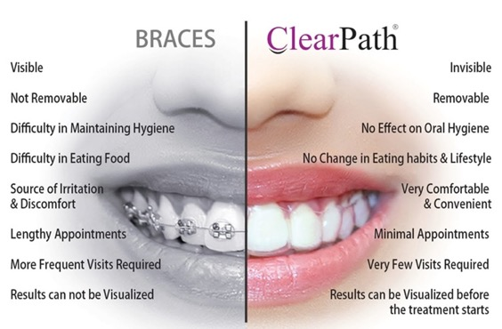 Braces - Orthodontic Braces In Mohali Tricity