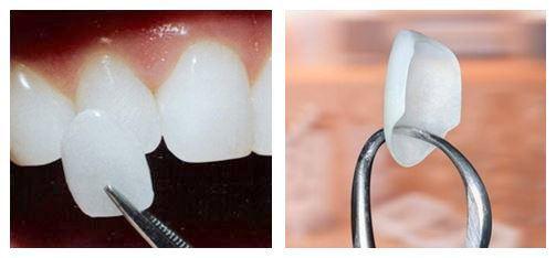 Dental Zirconia Crowns In Mohali - Dental-Porcelain-Veneers