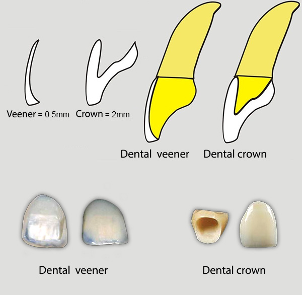Dental Zirconia Crowns In Mohali - dental veneers