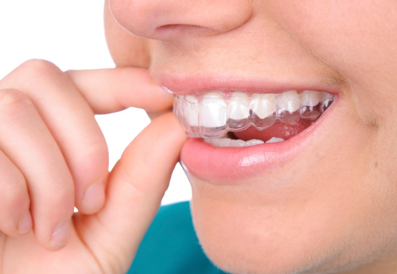 Orthodontic Braces In Mohali Tricity - Aligner Braces