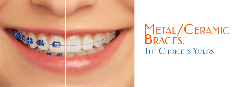 Orthodontic Braces In Mohali Tricity