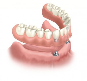 Flexible Partial Dentures Service In Mohali - overdentures
