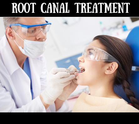 Root Canal Treatment – At the Root of it All