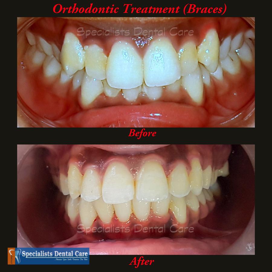 Orthodontic Treatment (Braces)