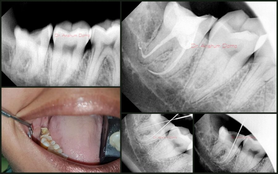 Successful 3rd Molar RCT