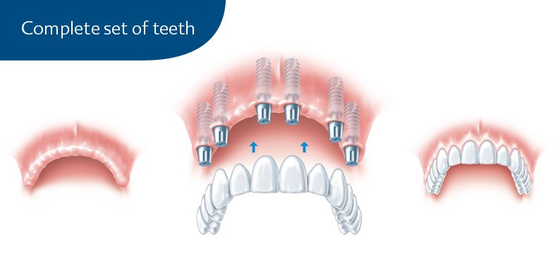 Full Mouth Dental Implants Clinic