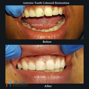 Anterior Tooth coloured Aesthetic Restoration