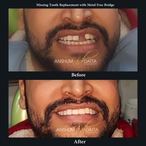 Replacement of missing Tooth with Metal Free bridge.