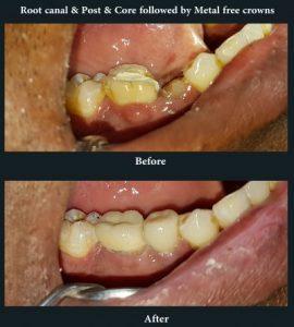 Infected & broken tooth