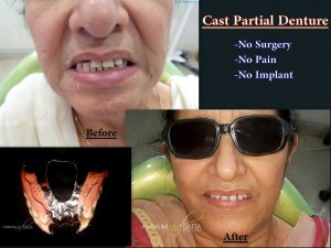 Replacement of Multiple Teeth with Cast Partial Denture