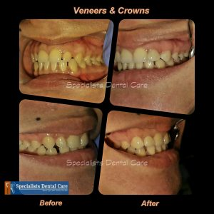 Smile Makeover with Veneers