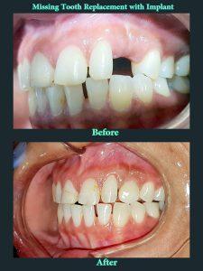 Karamjeet-Kaur-Implant-e1530943773752