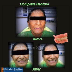 denture-final_001