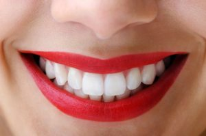 teeth whitening treatment in Mohali
