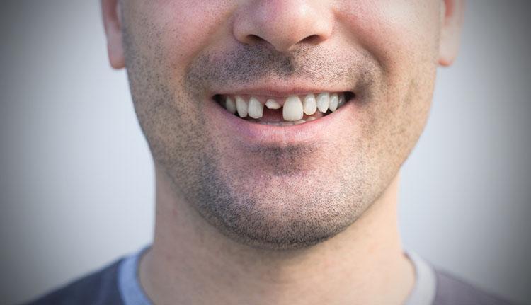 Broken/ Cracked Tooth