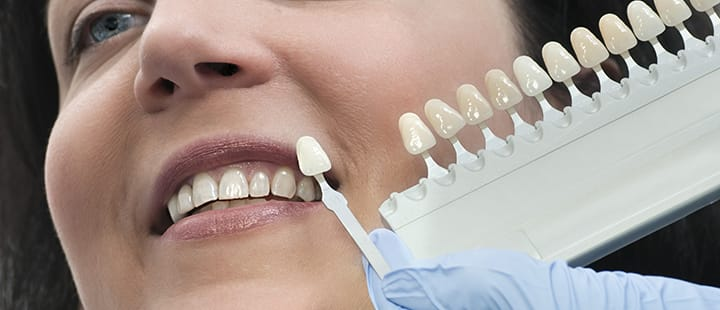 Dental Services and Procedures