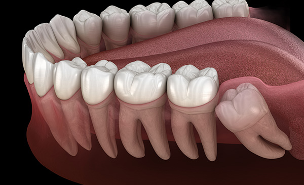 Wisdom Tooth Issues